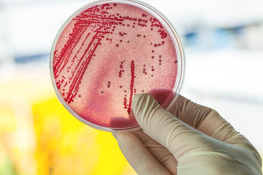 Boîte de Petri avec des bactéries